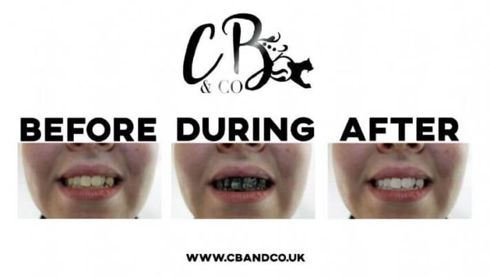 Σετ 2τεμ. για Λέυκανση Δοντιών με Άνθρακα