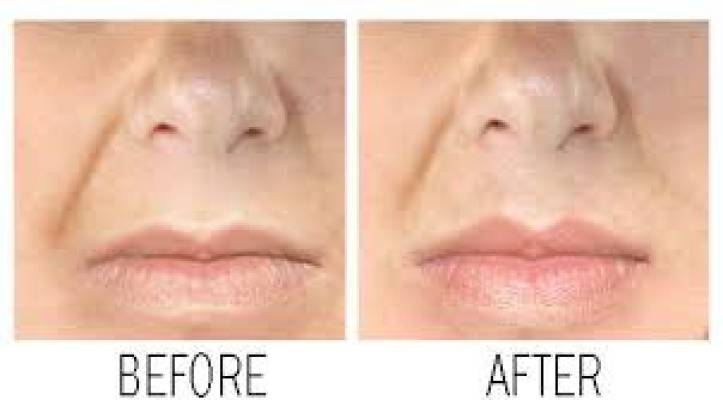 Perfect Pout Lip Plumper
